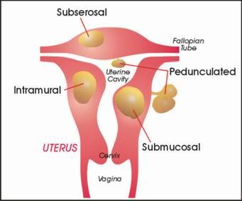 Bệnh u xơ cổ tử cung là gì?