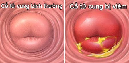 Bệnh viêm cổ tử cung là gì?