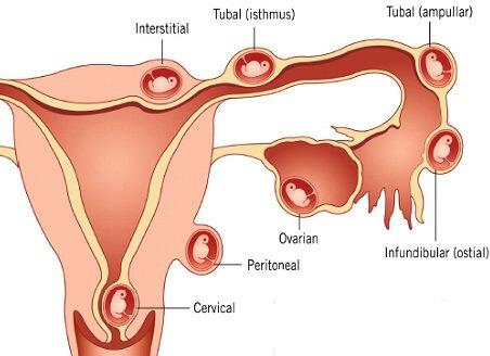 Nhận biết dấu hiệu có thai ngoài tử cung