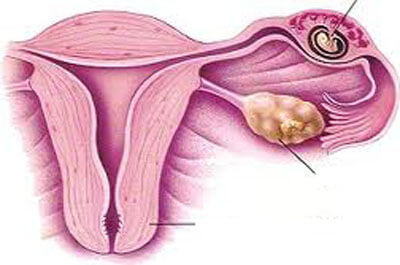 Các thông tin cần biết về thai ngoài tử cung
